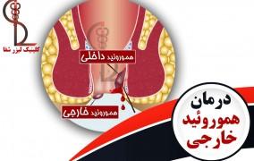 درمان بواسیر خارجی