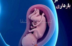 هموروئید در بارداری