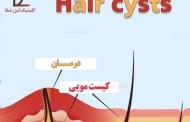 درمان سینوس مویی یا کیست مویی