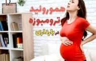 هموروئید ترومبوزه در بارداری