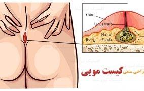 تفاوت جراحی سنتی با لیزر کیست مویی