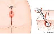مزایا و معایب درمان آبسه با لیزر