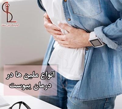 انواع ملین ها و درمان یبوست