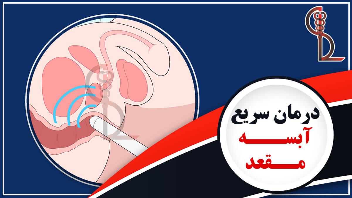 درمان سریع آبسه مقعد