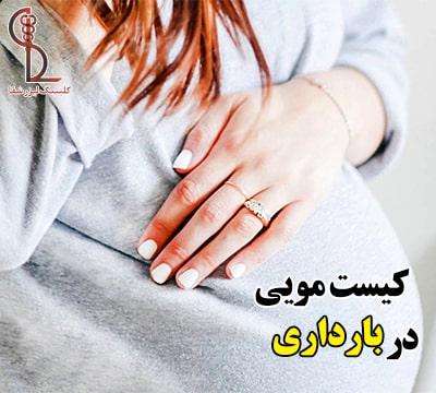 کیست مویی در بارداری