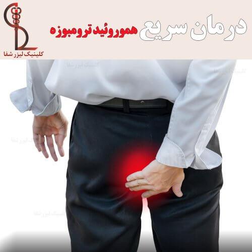 درمان سریع هموروئید ترومبوزه