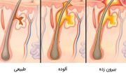 درمان سریع کیست مویی