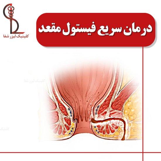 درمان سریع فیستول