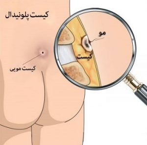 مزایا و معایب جراحی سنتی کیست مویی