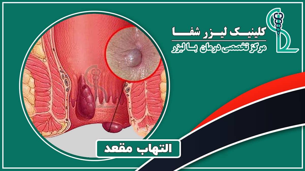 التهاب مقعد