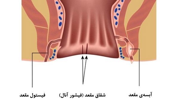 *علائم بیماری آبسه مقعد و نحوه تشخیص آن
