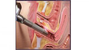 مزایا و معایب درمان با لیزر فیستول